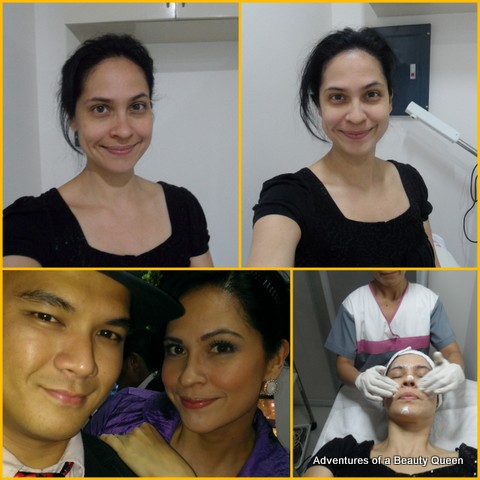 Top Left - Before the Diamond Peel. Top Right - After the Peel. Looking much brighter! At the bottom left that's me (with Jordan) a few hours after my Diamond Peel. Hindi obvious na pagod... galing talaga ni Dr. Shae Raymundo and Dermalosophy!